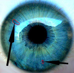 Blue Iris with Iridiology Markings