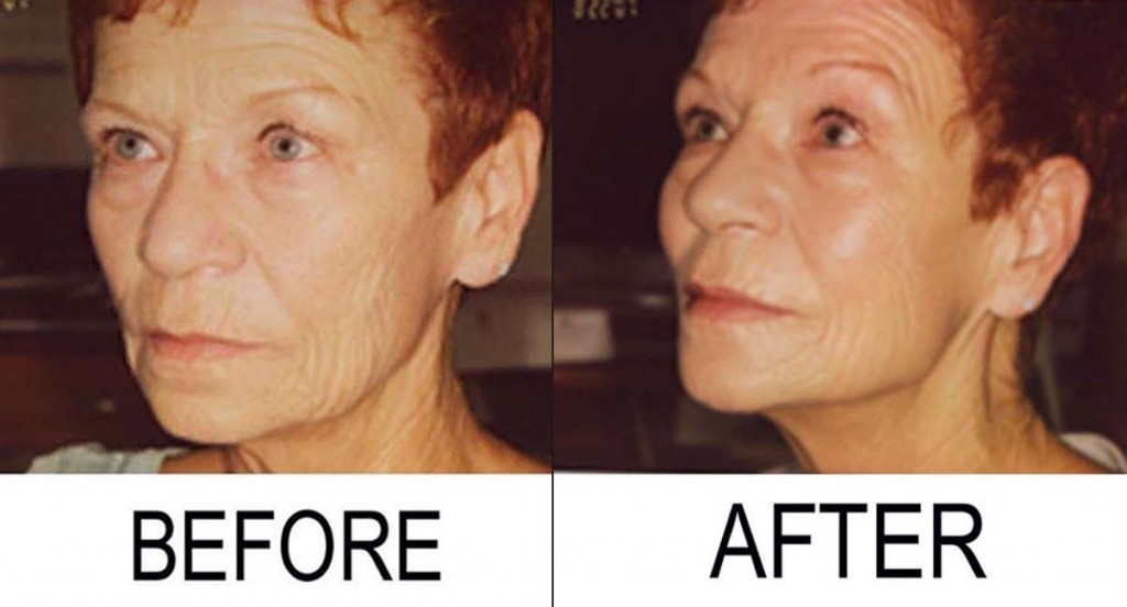 Wrinkles Before And After Drinking Water