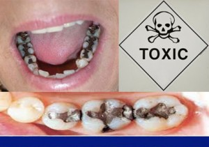 Amalgams Are Silver Or Black Fillings That Are Half Toxic Mercury