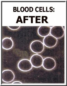 Blood Cels After Detox