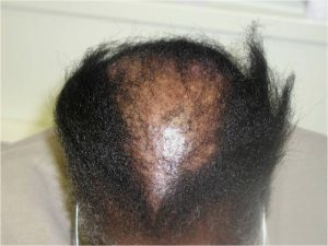 HAIR LOSS FEMALE