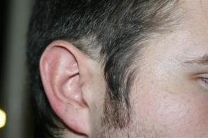 Male Pattern Baldness: Gall Bladder