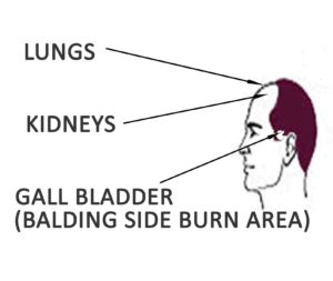 Hair Loss According to Organ Issues