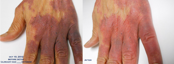 Blood Pooling in Hands, Before and After Detox