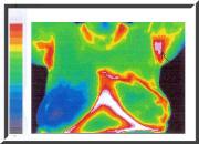Thermal Imaging, Breast