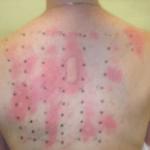 Allregies - Intradermal Skin Test