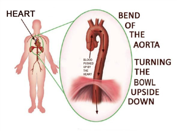 Hypertension: Bend of the Aorta