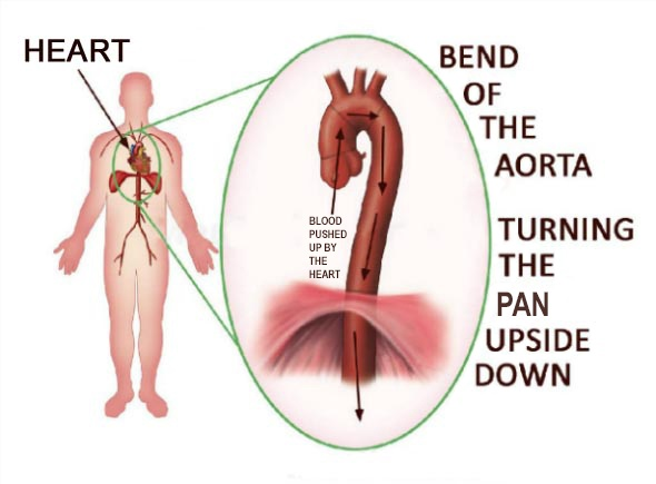 Increased Systolic Blood Pressure: Bend of the Aorta