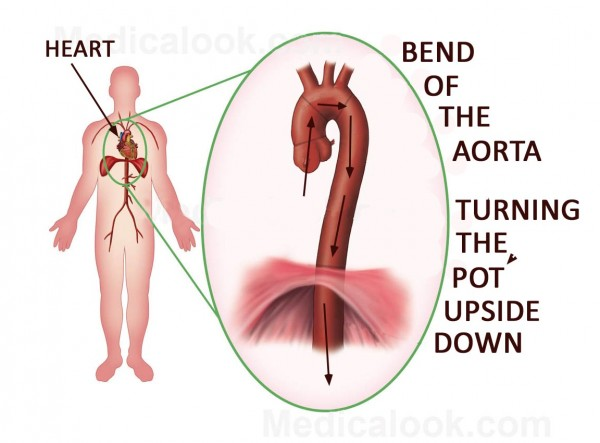 Bend of the Aorta