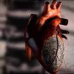 Heart - Widowmaker Heart Attacks
