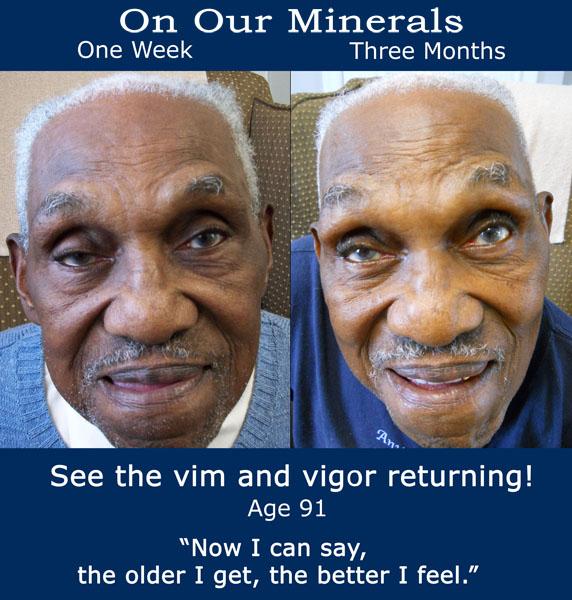 robert-b4 and after mbt minerals website